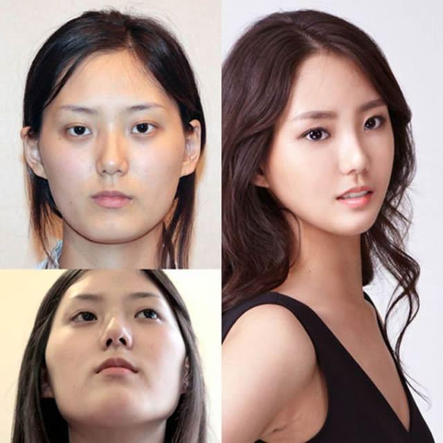 Cirugía Plástica en Corea Antes y Despues 2 (34)