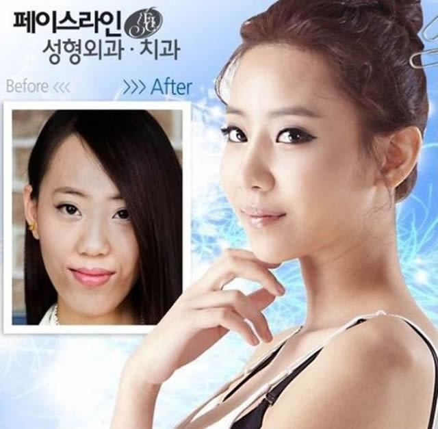 Cirugía Plástica en Corea Antes y Despues 2 (32)