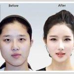 El antes y después: cirugía plástica en Corea 2