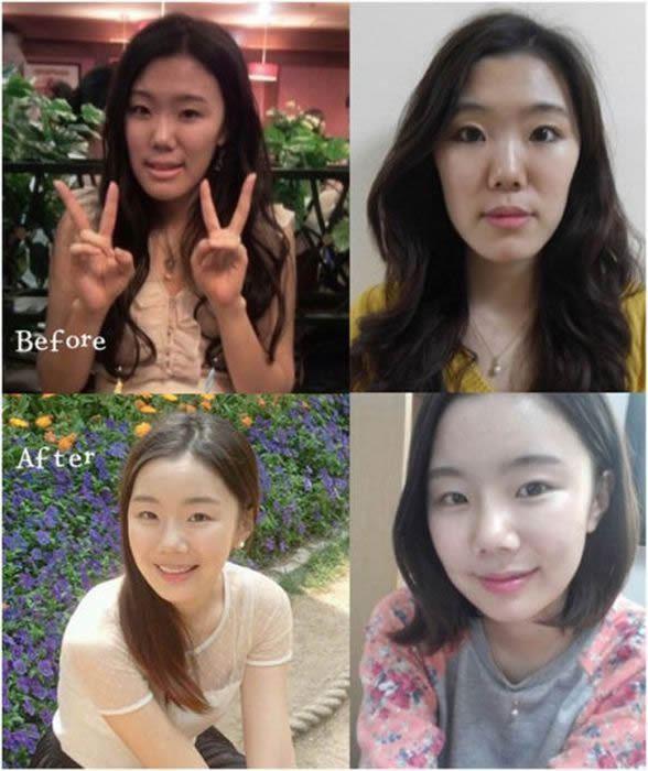 Cirugía Plástica en Corea Antes y Despues 2 (30)