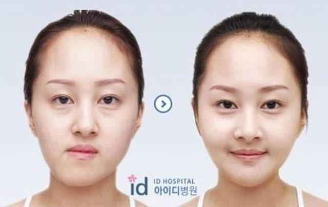Cirugía Plástica en Corea Antes y Despues 2 (29)