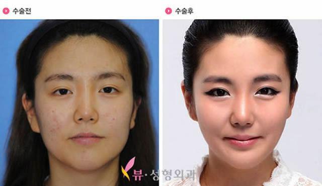 Cirugía Plástica en Corea Antes y Despues 2 (28)