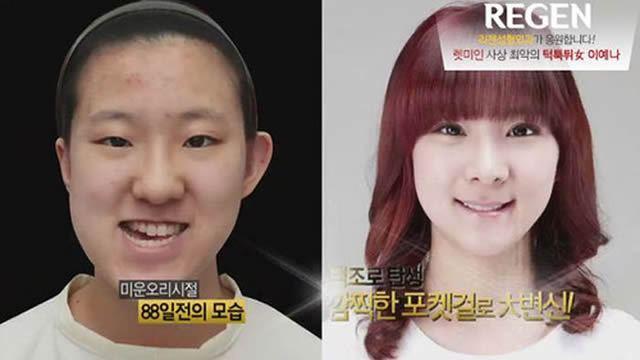 Cirugía Plástica en Corea Antes y Despues 2 (27)