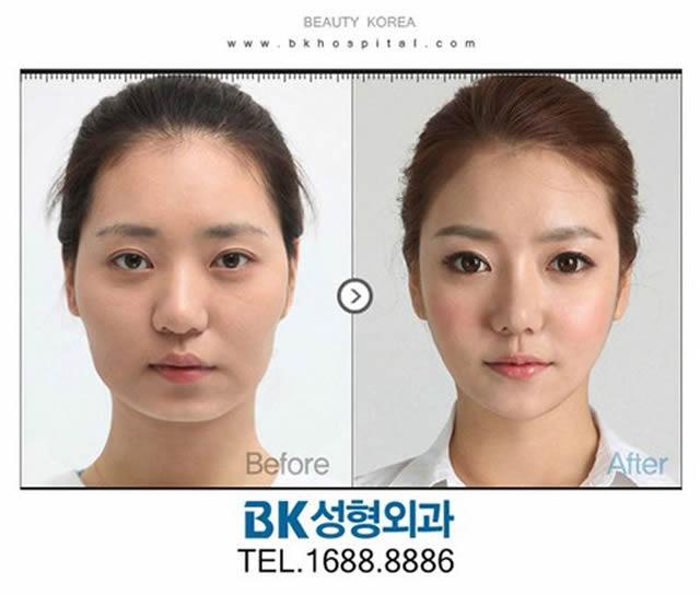Cirugía Plástica en Corea Antes y Despues 2 (26)
