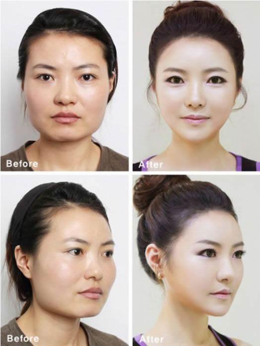 Cirugía Plástica en Corea Antes y Despues 2 (25)