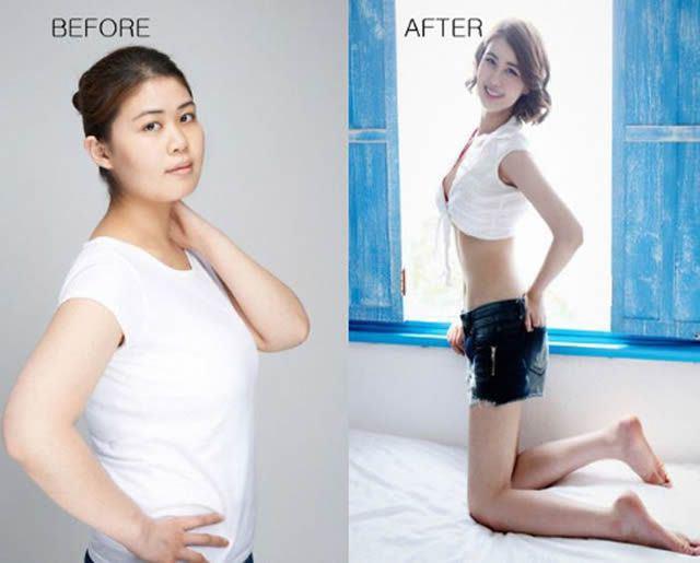 Cirugía Plástica en Corea Antes y Despues 2 (24)