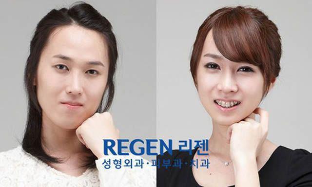Cirugía Plástica en Corea Antes y Despues 2 (23)
