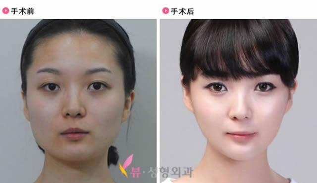 Cirugía Plástica en Corea Antes y Despues 2 (22)