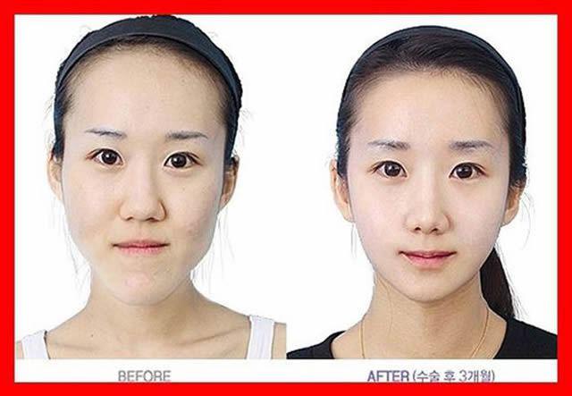 Cirugía Plástica en Corea Antes y Despues 2 (21)