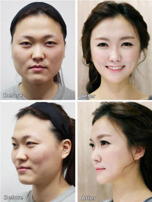 Cirugía Plástica en Corea Antes y Despues 2 (20)
