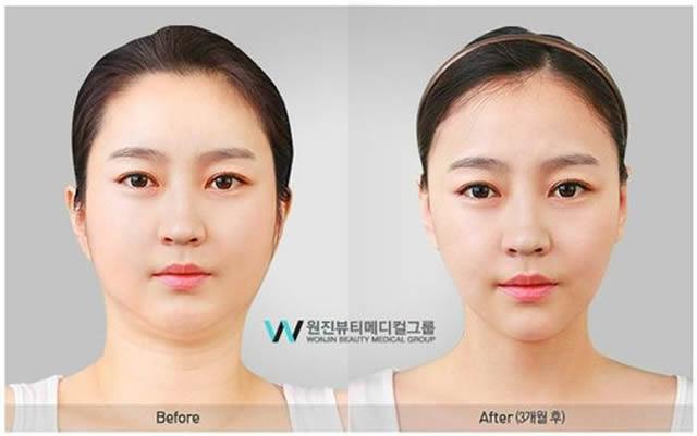 Cirugía Plástica en Corea Antes y Despues 2 (19)