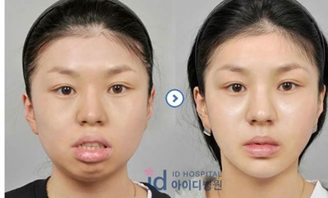 Cirugía Plástica en Corea Antes y Despues 2 (18)