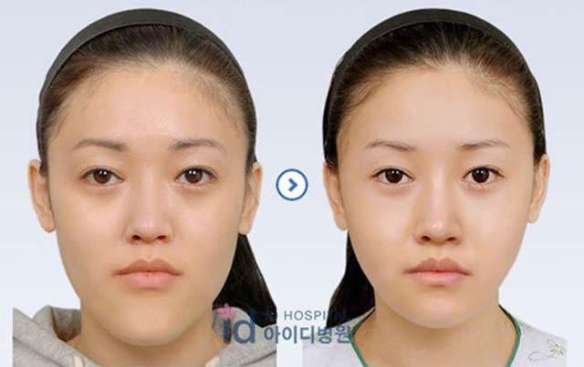 Cirugía Plástica en Corea Antes y Despues 2 (17)