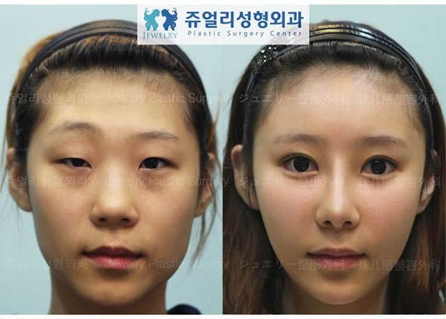 Cirugía Plástica en Corea Antes y Despues 2 (16)