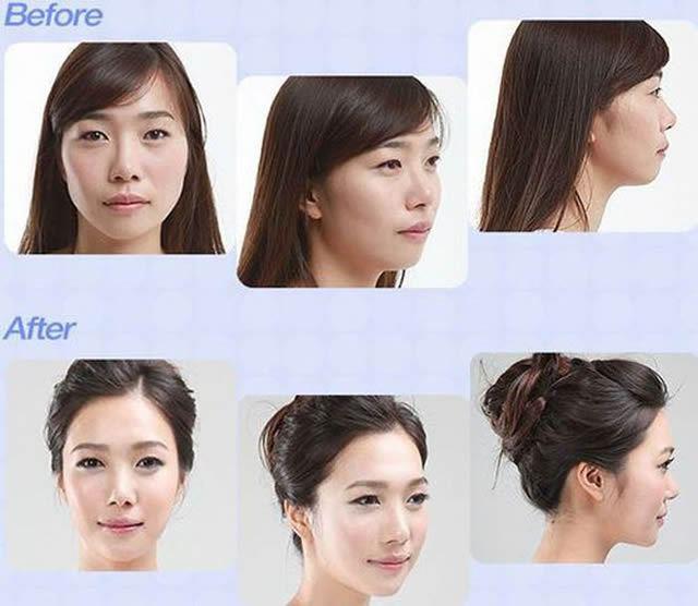 Cirugía Plástica en Corea Antes y Despues 2 (15)
