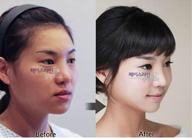 Cirugía Plástica en Corea Antes y Despues 2 (14)