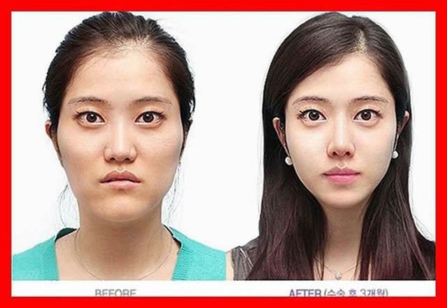 Cirugía Plástica en Corea Antes y Despues 2 (13)