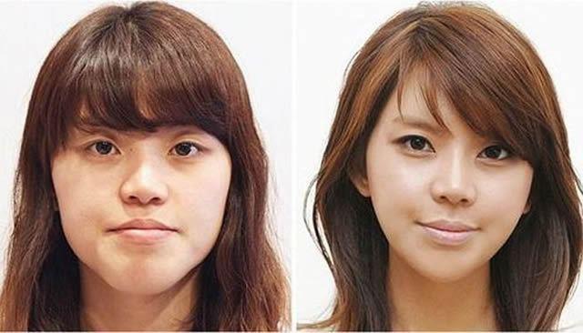 Cirugía Plástica en Corea Antes y Despues 2 (12)