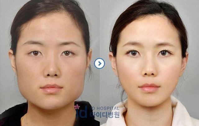 Cirugía Plástica en Corea Antes y Despues 2 (11)