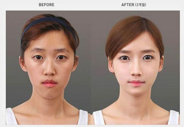 Cirugía Plástica en Corea Antes y Despues 2 (10)