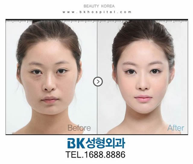 Cirugía Plástica en Corea Antes y Despues 2 (9)