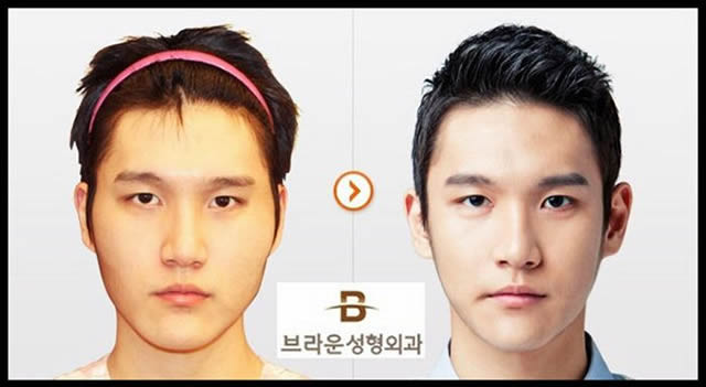 Cirugía Plástica en Corea Antes y Despues 2 (8)