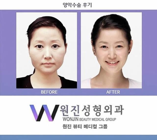 Cirugía Plástica en Corea Antes y Despues 2 (7)