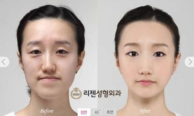 Cirugía Plástica en Corea Antes y Despues 2 (6)