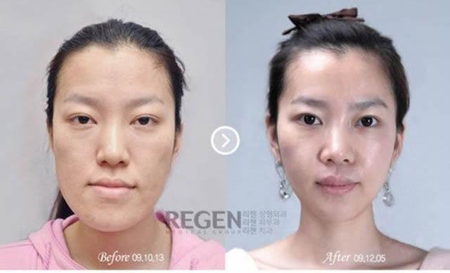 Cirugía Plástica en Corea Antes y Despues 2 (5)