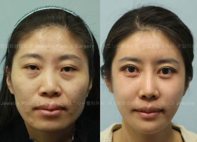 Cirugía Plástica en Corea Antes y Despues 2 (4)