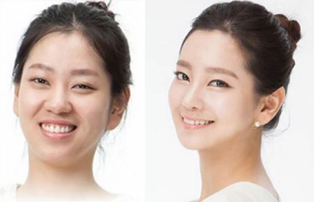 Cirugía Plástica en Corea Antes y Despues 2 (3)