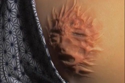 tumor rostro huano