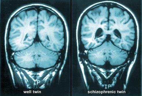 MRI esquizofrenia