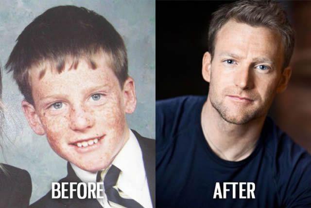 Síndrome de Patito Feo Antes y Después (20)