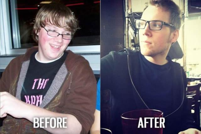 Síndrome de Patito Feo Antes y Después (18)