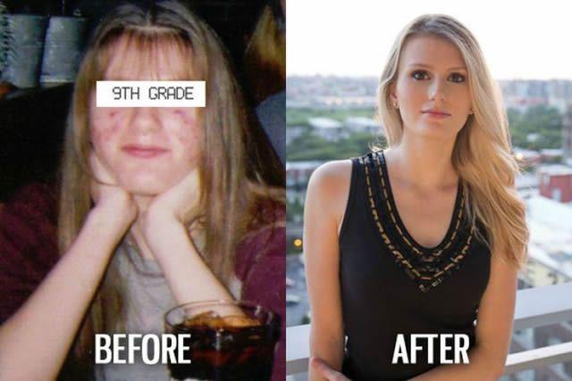 Síndrome de Patito Feo Antes y Después (17)