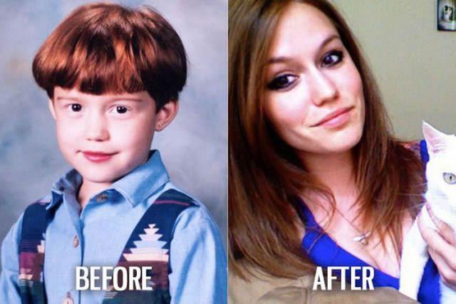 Síndrome de Patito Feo Antes y Después (16)