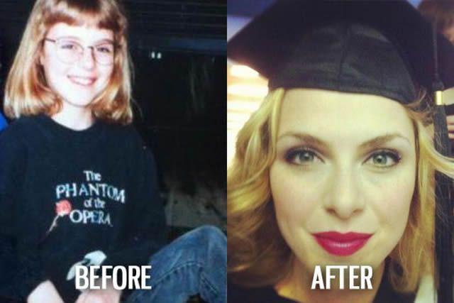 Síndrome de Patito Feo Antes y Después (15)