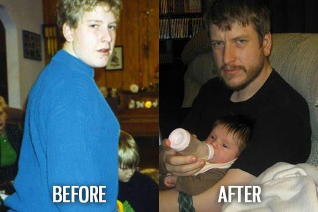 Síndrome de Patito Feo Antes y Después (14)