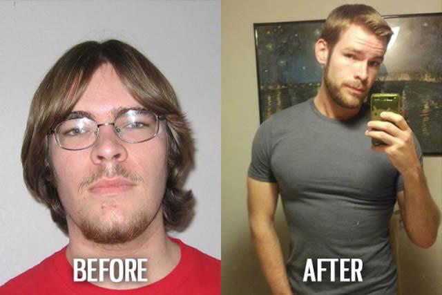 Síndrome de Patito Feo Antes y Después (12)