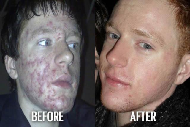 Síndrome de Patito Feo Antes y Después (11)