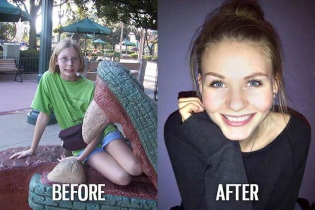 Síndrome de Patito Feo Antes y Después (10)