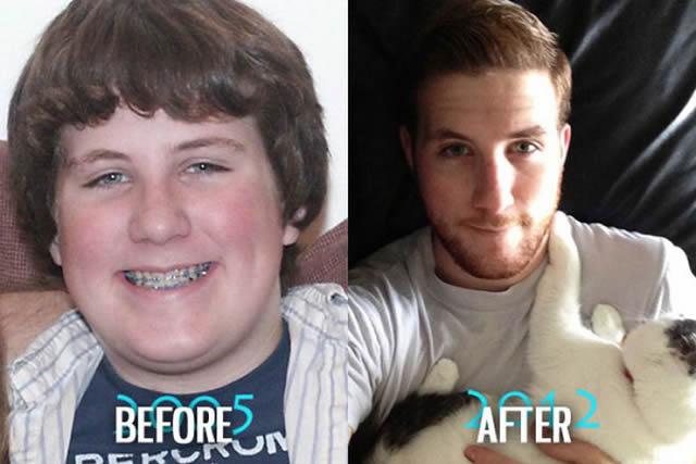 Síndrome de Patito Feo Antes y Después (9)