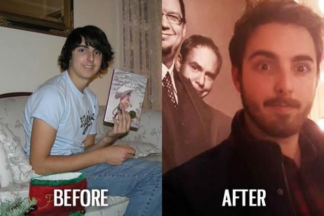 Síndrome de Patito Feo Antes y Después (8)
