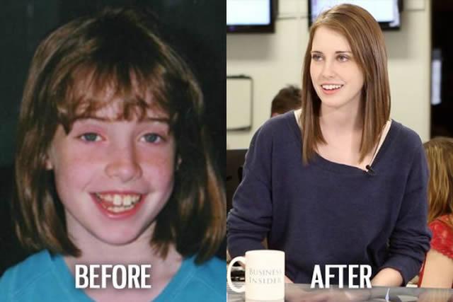 Síndrome de Patito Feo Antes y Después (5)