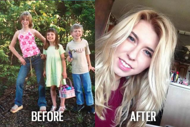 Síndrome de Patito Feo Antes y Después (3)
