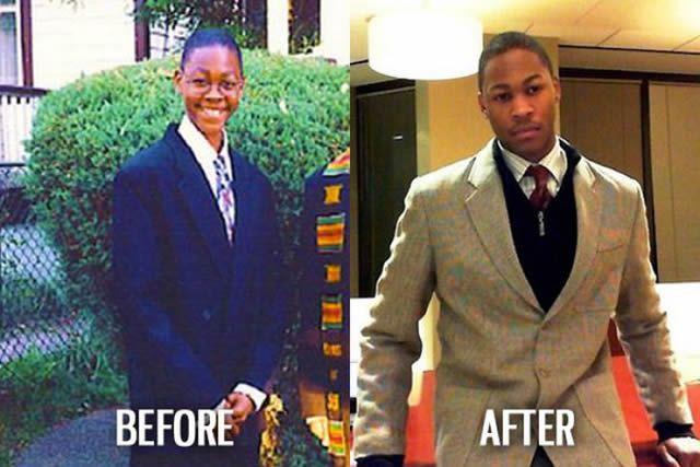 Síndrome de Patito Feo Antes y Después (55)