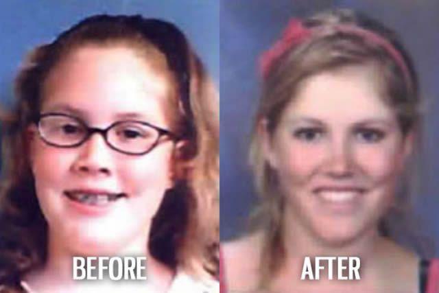 Síndrome de Patito Feo Antes y Después (54)