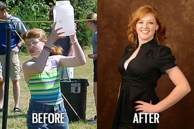 Síndrome de Patito Feo Antes y Después (52)