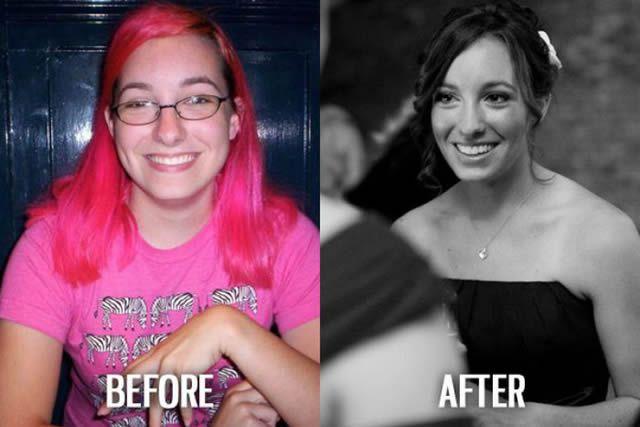 Síndrome de Patito Feo Antes y Después (51)
